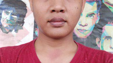 Photo of Perawat Medis UGD Kunir Di aniaya Oknum Kades Jatigono